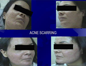 acne_scarring