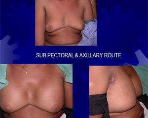 axilary_route