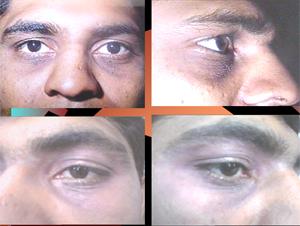 bleferoplasty1