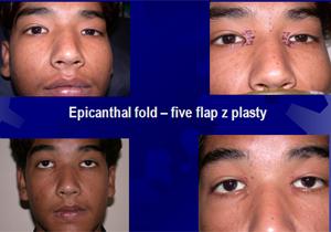 bleferoplasty2