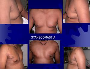 gynecomestia1