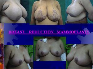 mammoplasty2