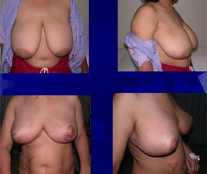 mammoplasty4