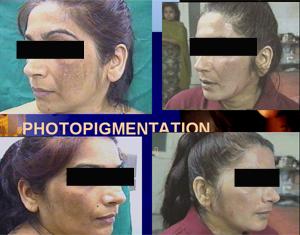 photopigment1
