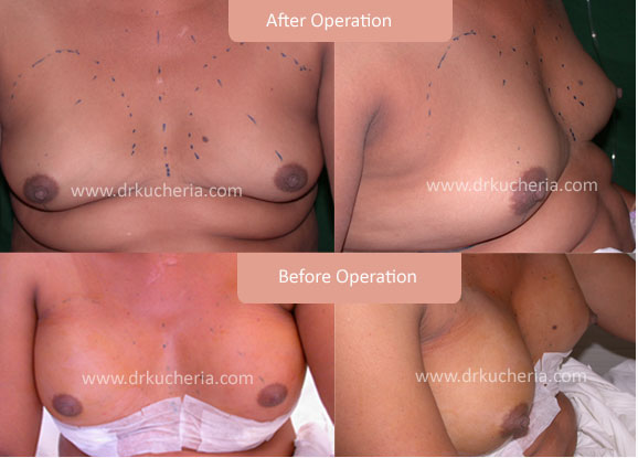 Breast-Implant-in-Indore
