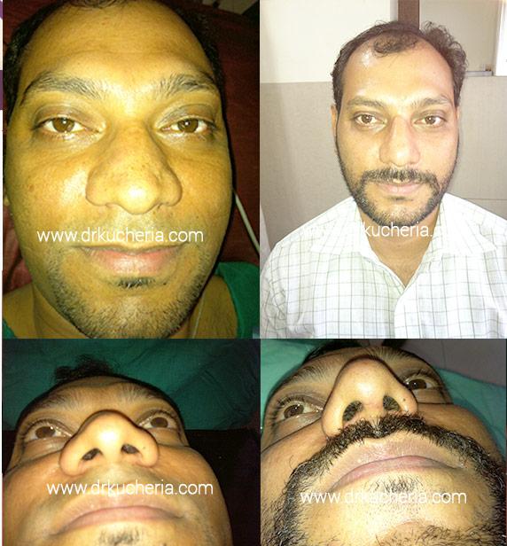 Nose-Correction-Surgery-(Rhinoplasty)-at-Sushrut-Plastic-Surgery-Centre,-Indore