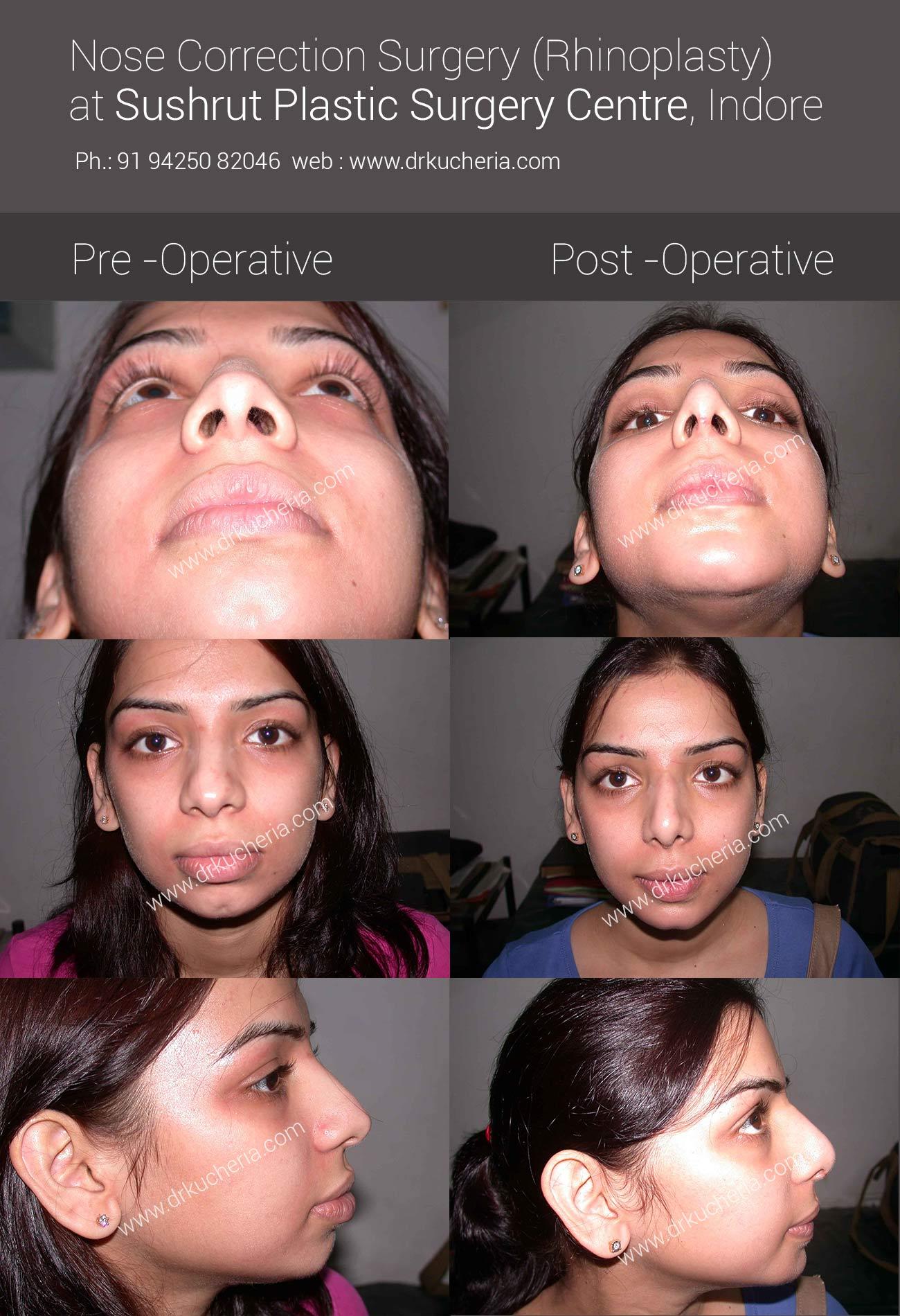 Nose-Correction-Surgery-Rhinoplasty-at-Sushrut-Plastic-Surgery-Centre-Indore-2013