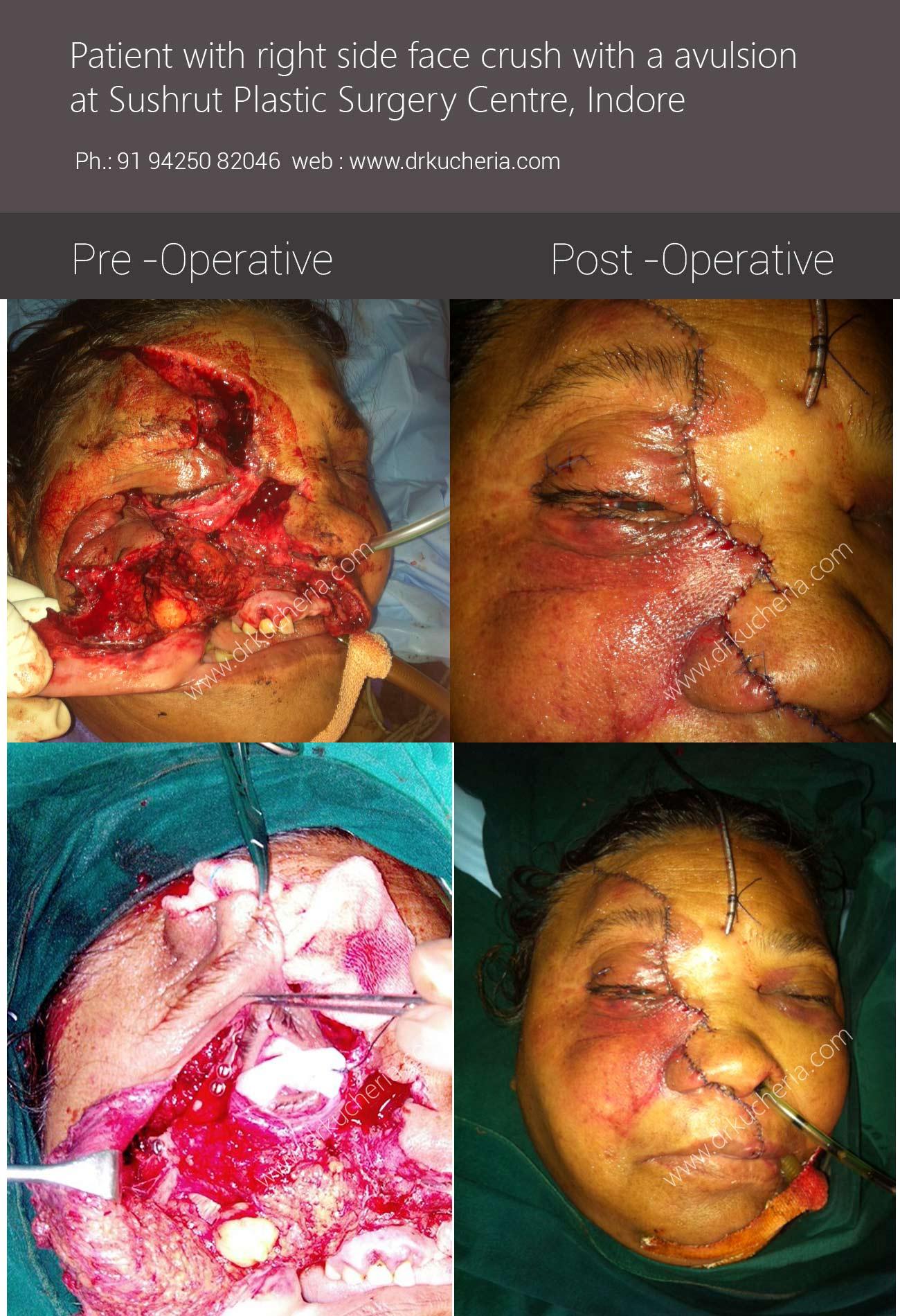 Sushrut-Plastic-Surgery-Centre-Indore-2014