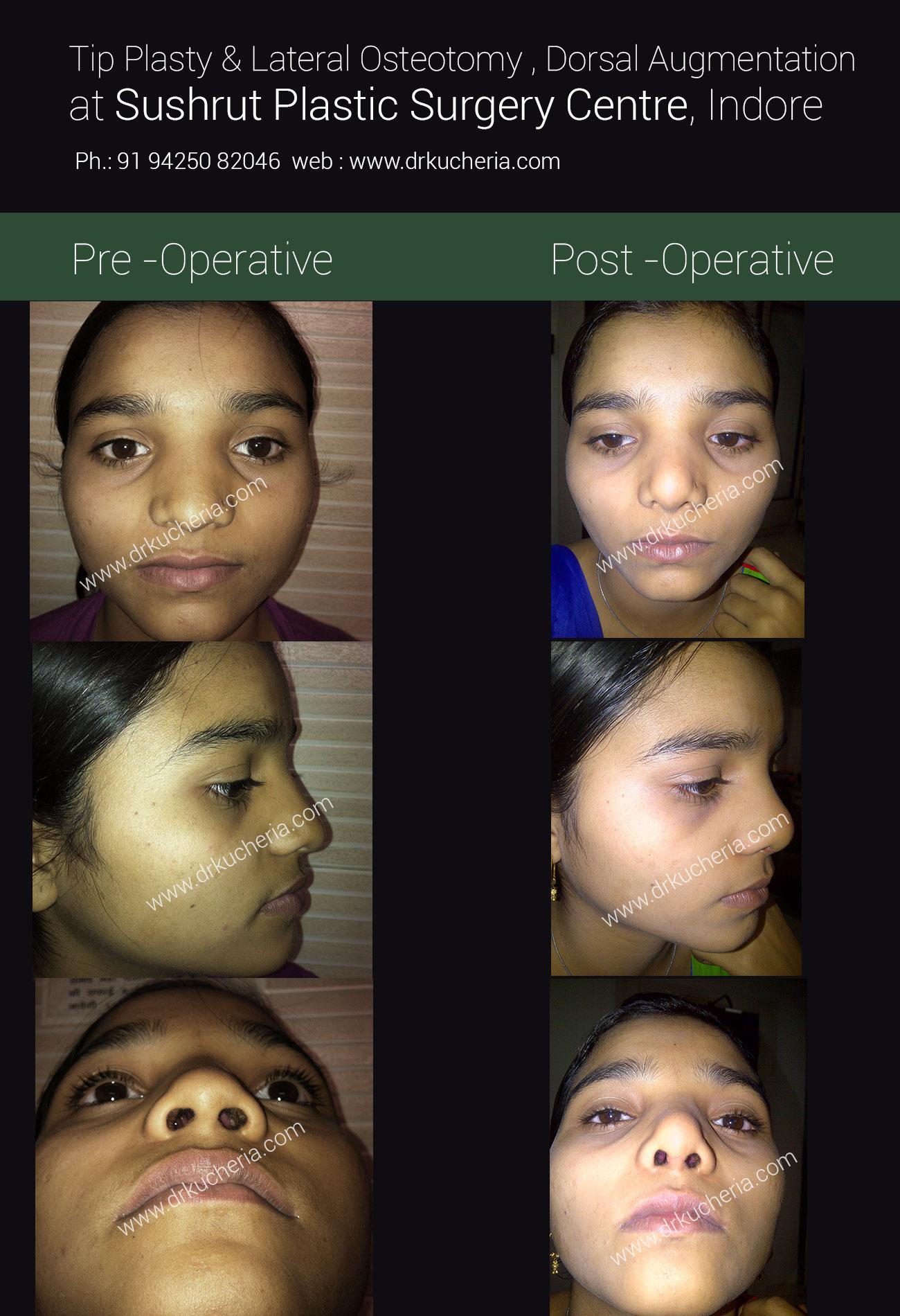 tip-plasty-&-lateral-osteotomy-dorsal-augmentation