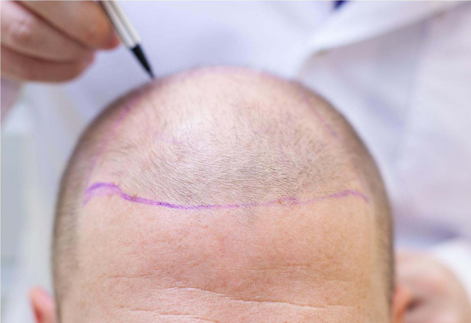 Hair Transplant Indore
